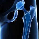 hip implant